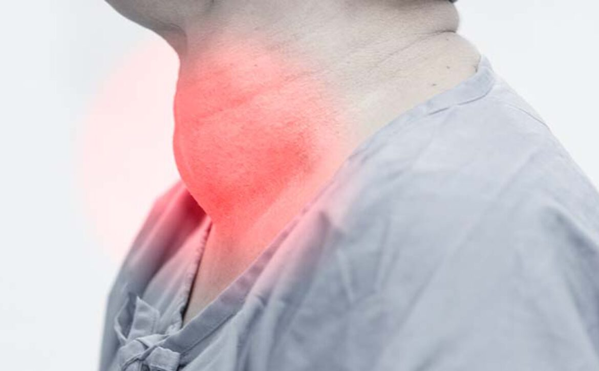 Enlarged,Multinodular,Thyroid,Goiter,In,Middle-aged,Asian,Female.by,Being,Healed
