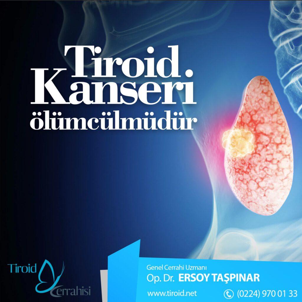 tiroid-kanseri-olumcul-mudur